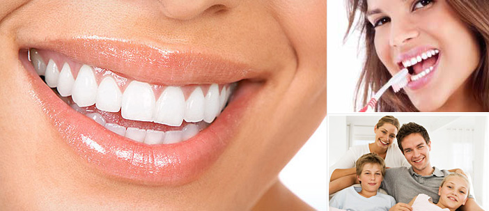 About Best Teeth Whitening Dublin