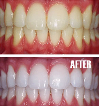 Laser teeth whitening dublin before and after