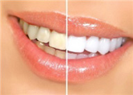 Teeth Whitening Balls Bridge